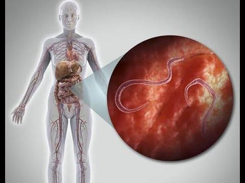 A lymphedema parazitákat okoz