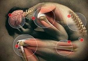 neorickettsia helminthoeca kezelés aszcariasis tabletták