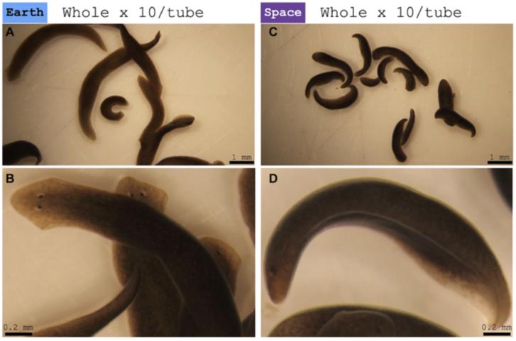 Pinworms a vizeletben