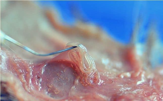 Enterobiasis (pinworms)