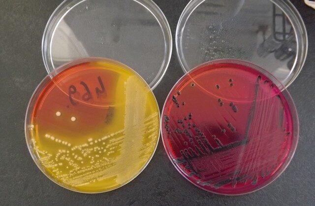 széklet parazita vizsgálat