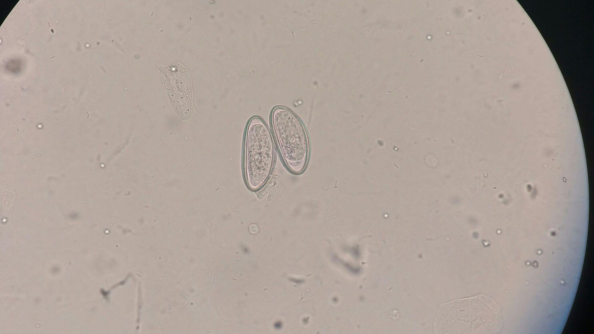 Paraziták a székletben: jelek és fotók - Ascaris tojás a székletben kezelés után