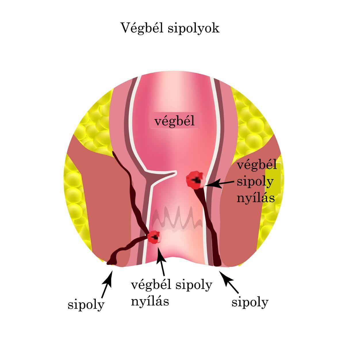 giardia katt symtom strongyloidosis geohelminth