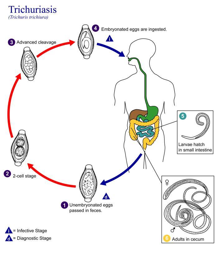Helmint fertőzések kezelése. Milyen helmint gyógyszeres kezelés egy éves csecsemő