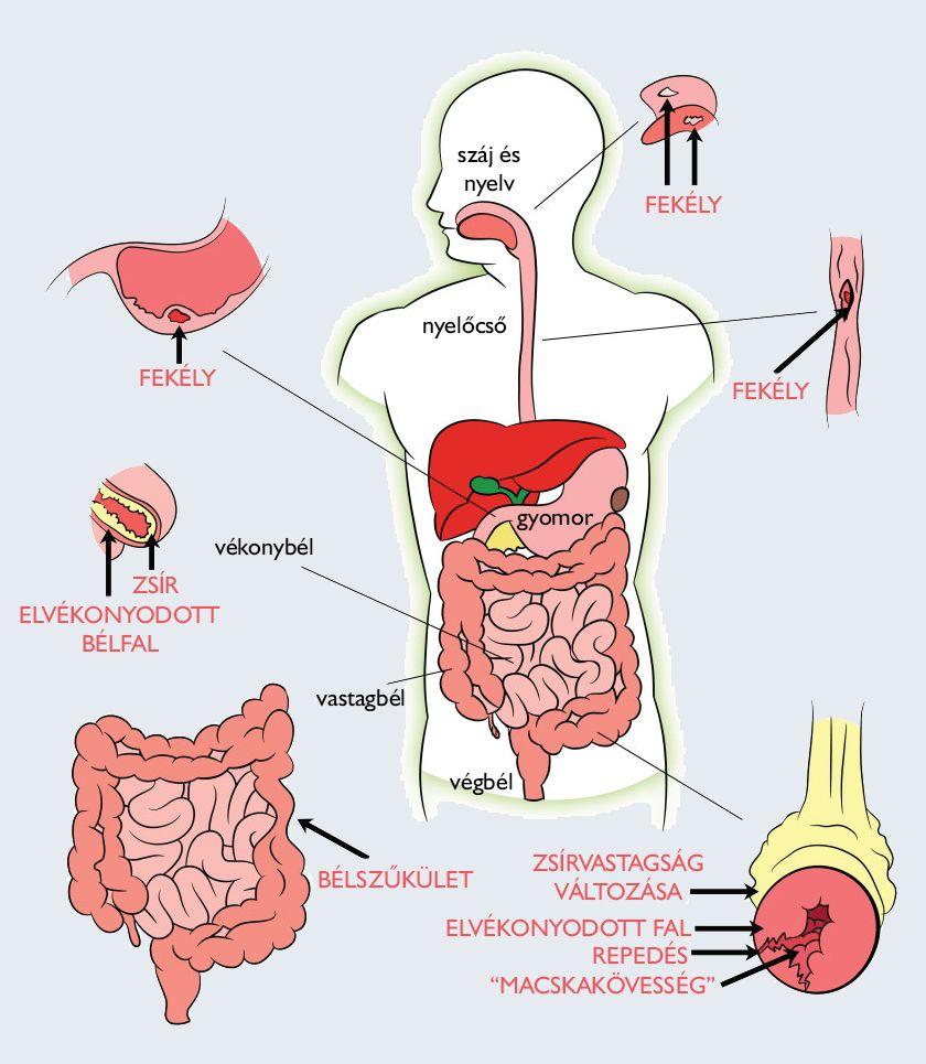 Univerzális gyógyszer az emberi paraziták számára - Modern gyógyszerek az emberi test parazitáira