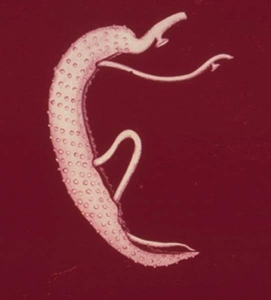 egy felnőtt emberi kerekes féreg él orsóféreg kezelése emberben