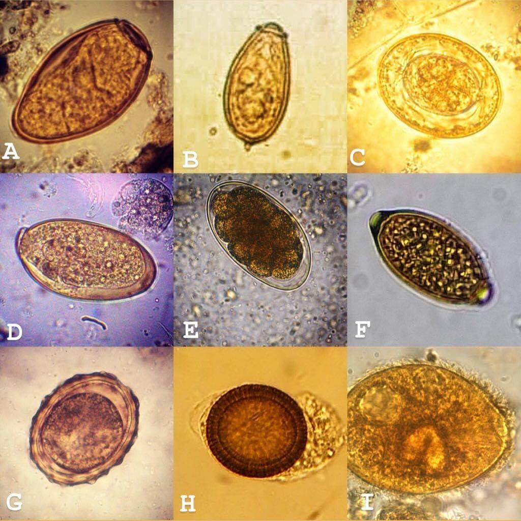 szarvasmarha szalagféreg az emberi testben paraziták az arcon