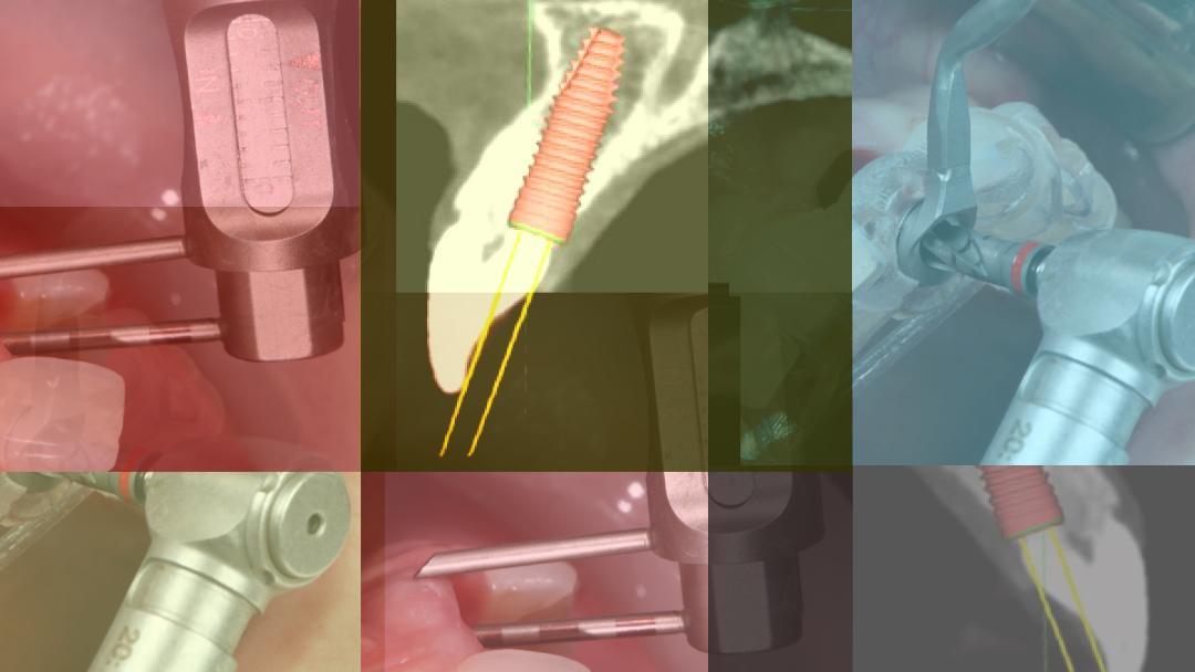implantálja a rossz leheletet