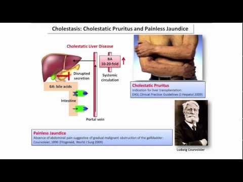 choleretic gyógyszerek parazitákhoz