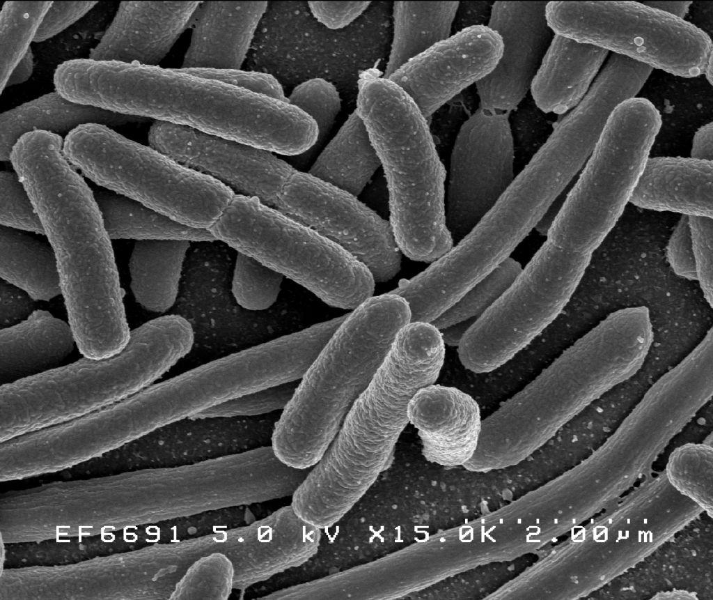 a gombás paraziták testének megtisztítása a leggyakoribb férgek gyermekeknél