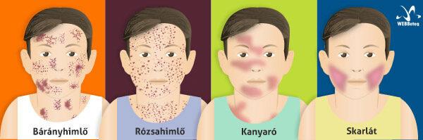 Mi a kolecisztitis, tünetei és kezelése - Megelőzés