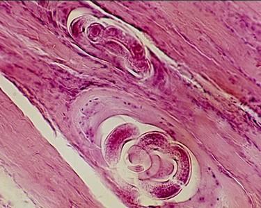 hogyan lehet gyorsan megszabadulni a pinworms- től felnőtteknél