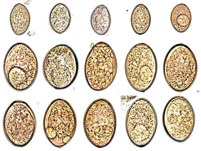 diphyllobothriasis tojások galandférgek 2