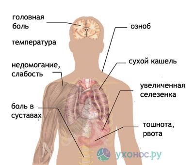 Malariális plazmodium: életciklus, fejlődési és szervezeti jellemzők