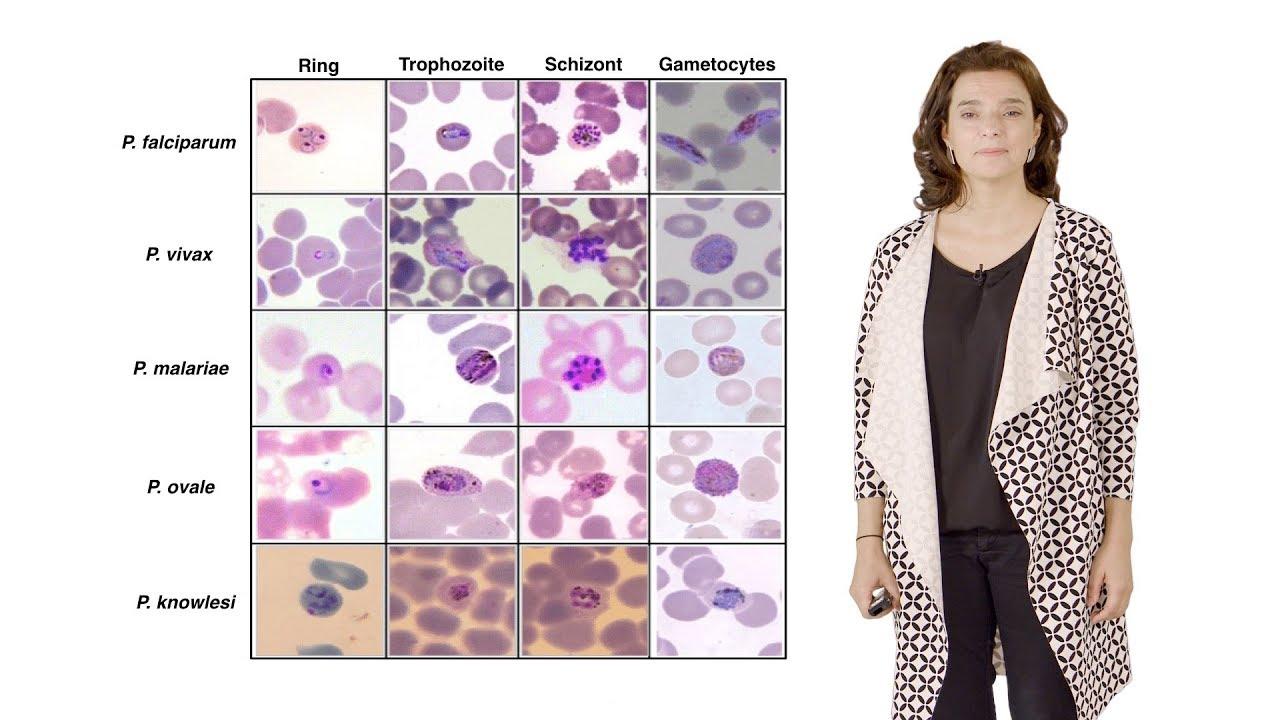 Először látható, hogyan hatol a sejtbe a malária kórokozója - Malária plazmodium parazita