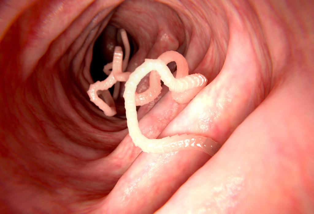 hogyan lehet eltávolítani a parazitákat egy gyermektől féreg gyógyszerek a megelőzés érdekében