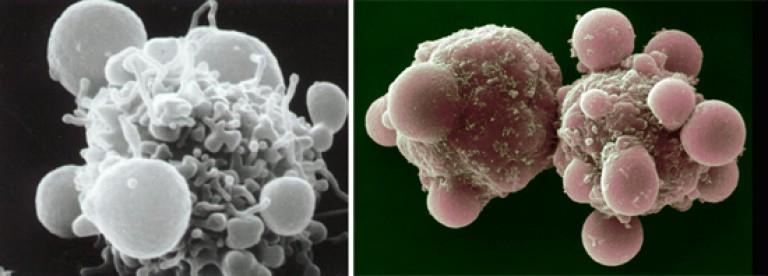 férgek enterobiosis megelőzése és kezelése a férgek megelőzése a gyermekek algoritmusában