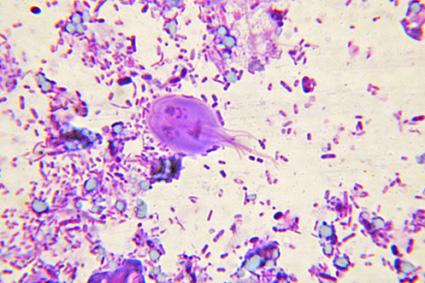 Gardnerella vaginalis, clue cells. nugent score 10   Orvosok