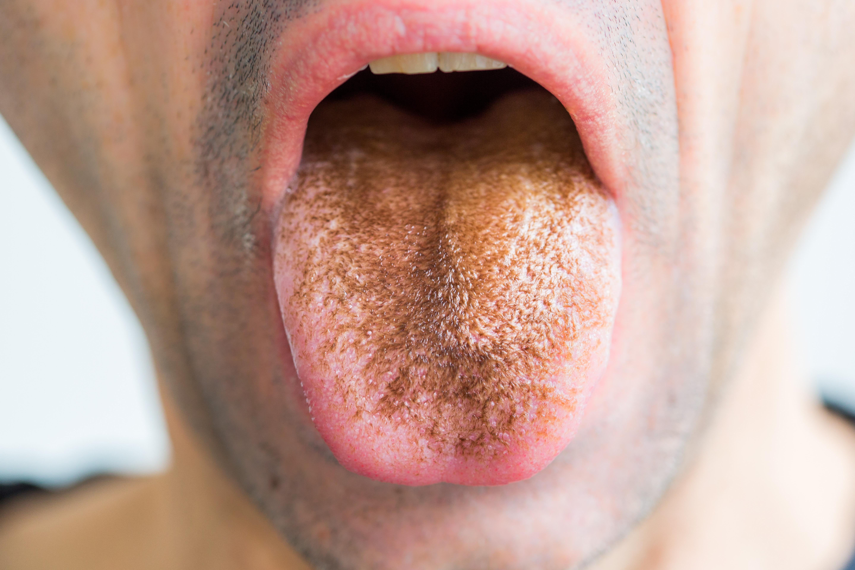A nyelvét rossz lehelet borítja, Tea recept a paraziták számára