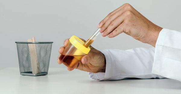 gyógyszer a féregek és férgek ellen