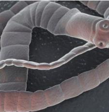 giardiasis celiac disease hogyan lehet megszabadulni a parazitáktól felnőtteknél