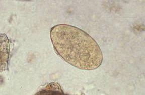 Diphyllobothriasis (galandféreg) - tünetek, diagnózis, kezelés