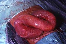 parazita helminthiasis