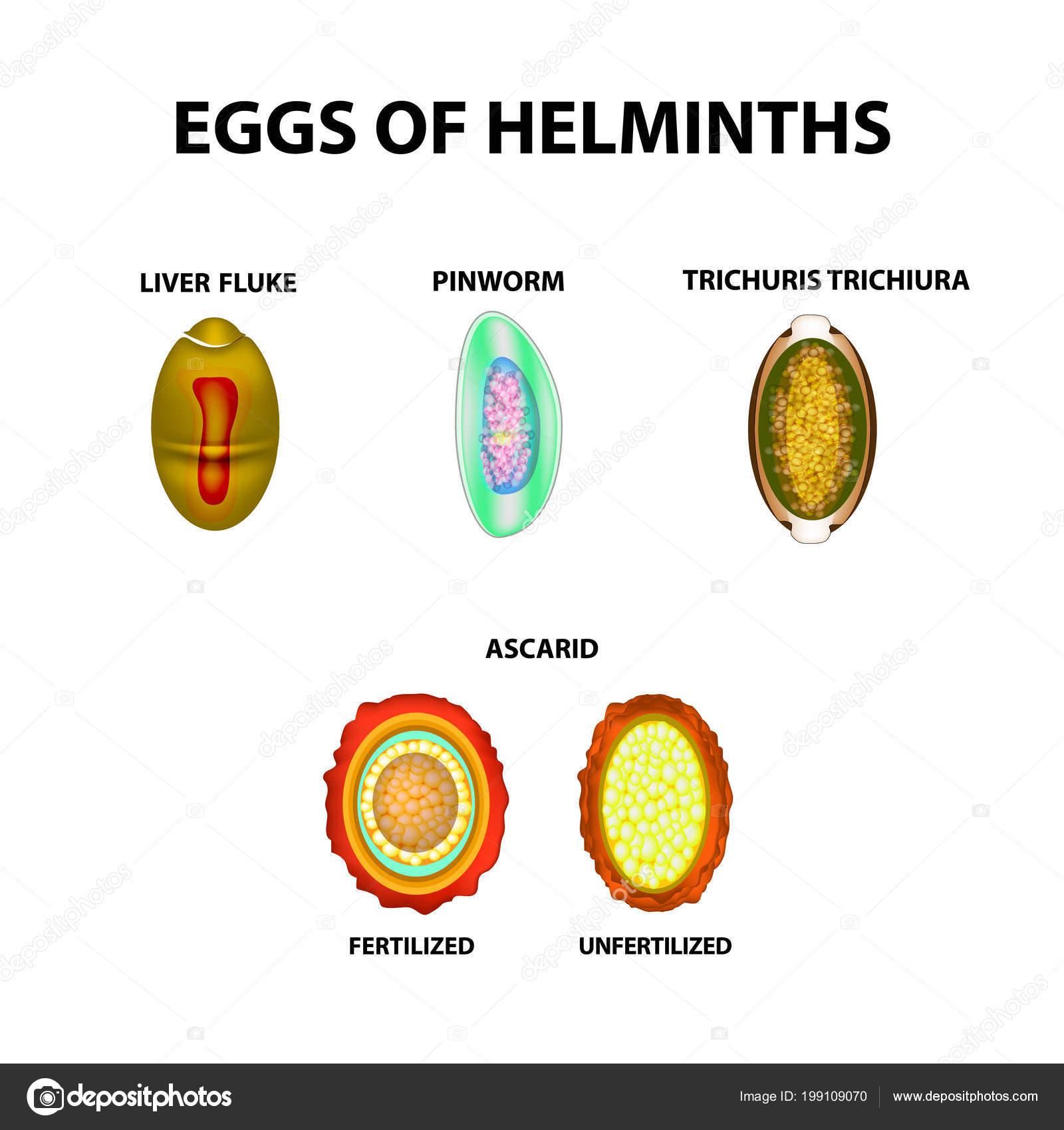 Ascaris: a fotó, hogy az emberi ascaris hogyan néz ki, Ascariasisban szenvedő betegség előfordulhat