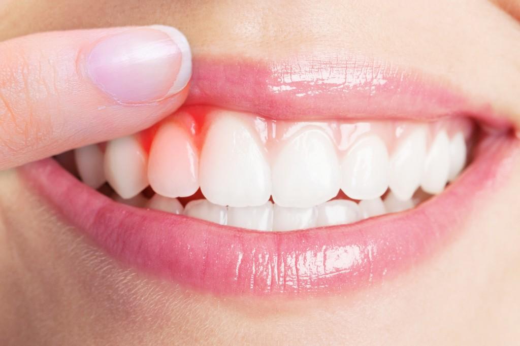 Összegyűjtöttük a fogínygyulladás tüneteit és figyelmeztető jeleit   parodontax