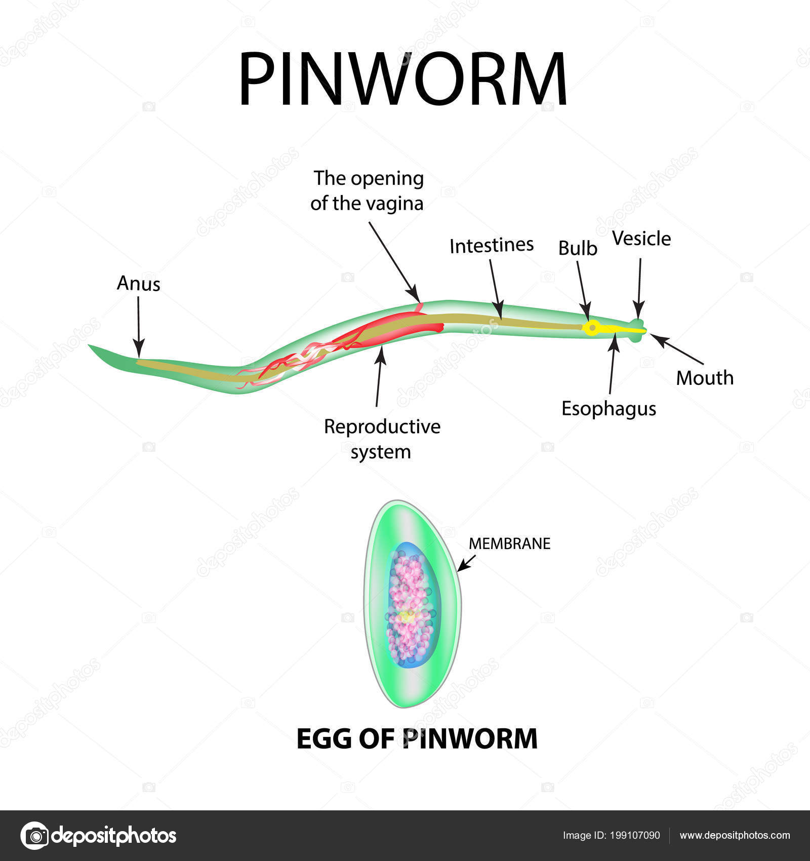 Pinworm veszély. Miért veszélyes a pinworms gyerekeknek és felnőtteknek?