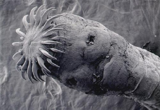 Emberi nekatorózis tünetek - Enterobiosis milyen férgek