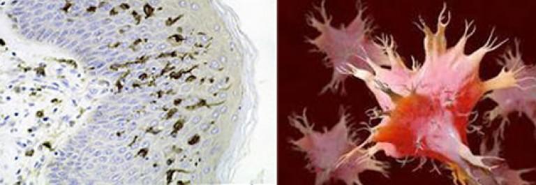 helminták patogenezise az emberi testben élő paraziták tünetei