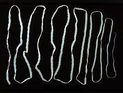 horgasfejű galandféreg tünetei
