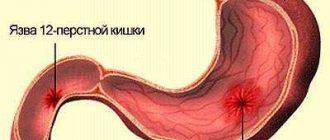 kerekféreg kezelés és tünetek