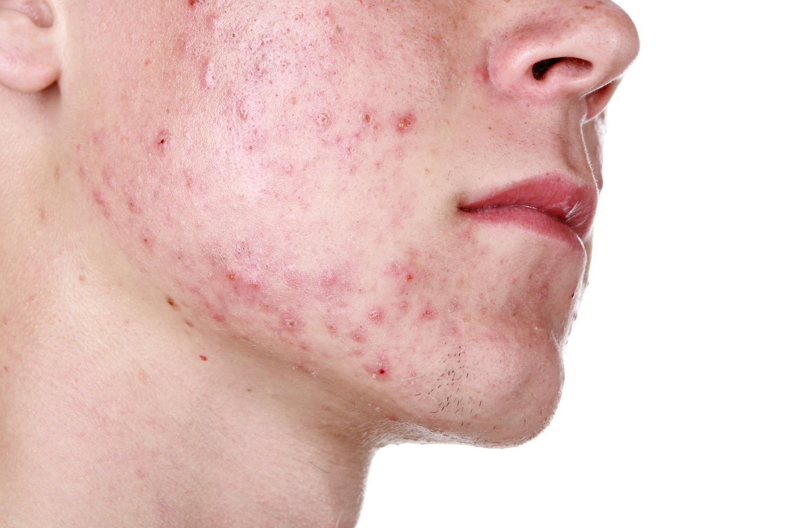 12 biztos jele annak, hogy parazita van a testedben | nyelvprofil.hu