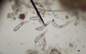 a helminthiasis jelei hatékony gyógyszer a pinworms számára