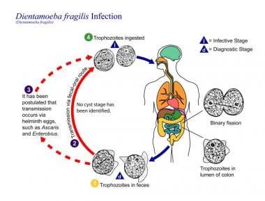 pinworm patogenezis paraziták kezelése terhes
