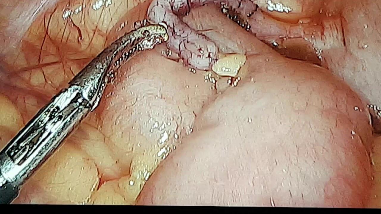 Vajon a pinworms fertőző e