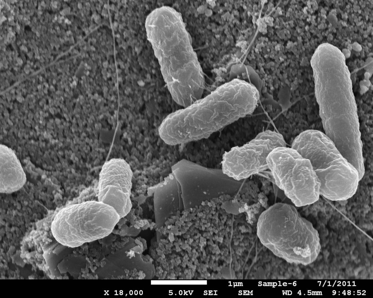 az emberek protozoán élő parazitáinak gyógyszerei lehetséges e gyógyszereket használni férgek megelőzésére