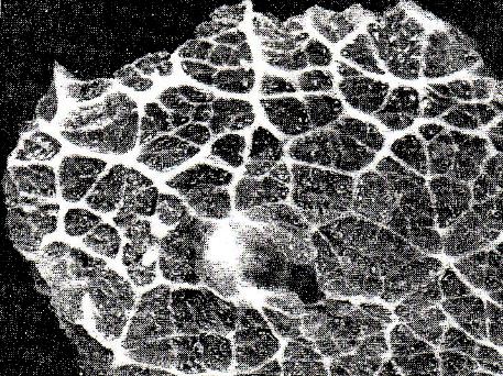 szarvasmarha galandféreg