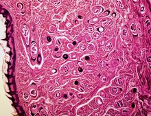 trichinosis Helix