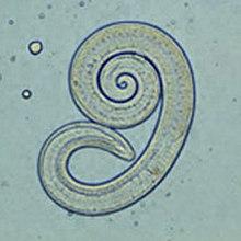 Trichinella Helix. A pinworm megelőzése, A leghatékonyabb megoldás a pinworms eltávolítására