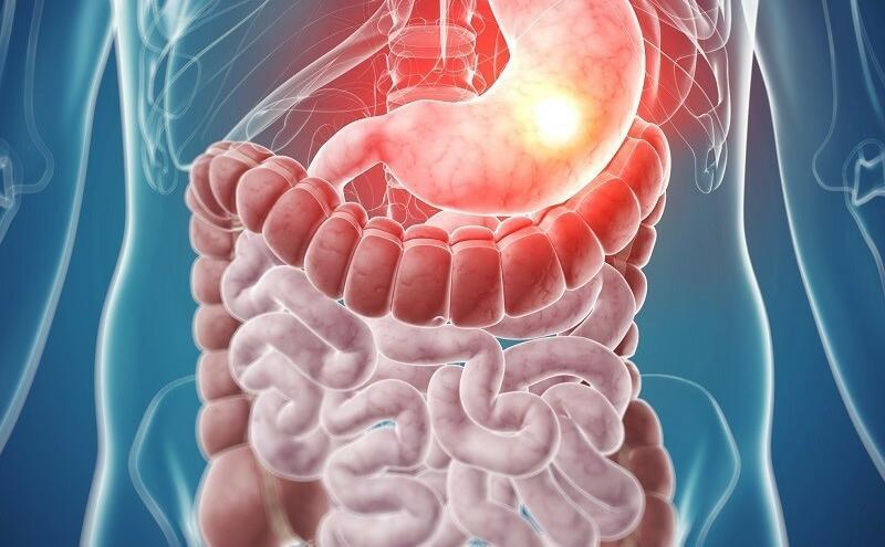 a gyomor rossz leheletet okoz