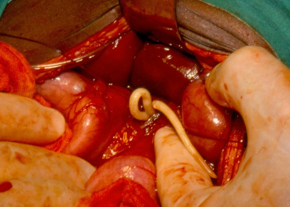 urticaria, helminthiasis férgek emberi méretű kezelés