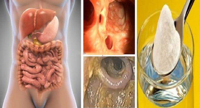 A hymenolepidosis egy betegség
