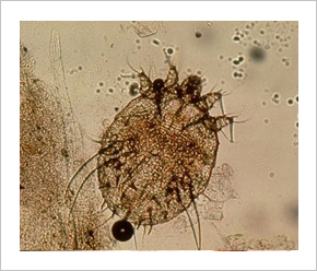 bőrkiütés parazitákkal