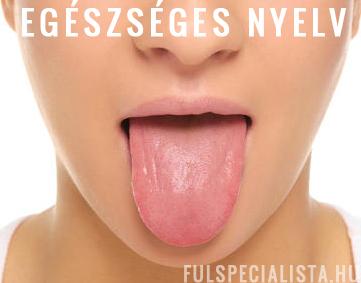 rossz lehelet fehér nyelv gyomor