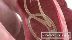 kerekféreg fertőzési módszerek Ascaris tabletta felnőtteknek