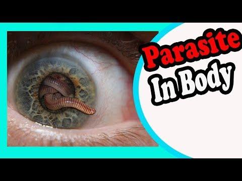 giardia in human feces gyógymód szemölcsök és papillómák mérgező