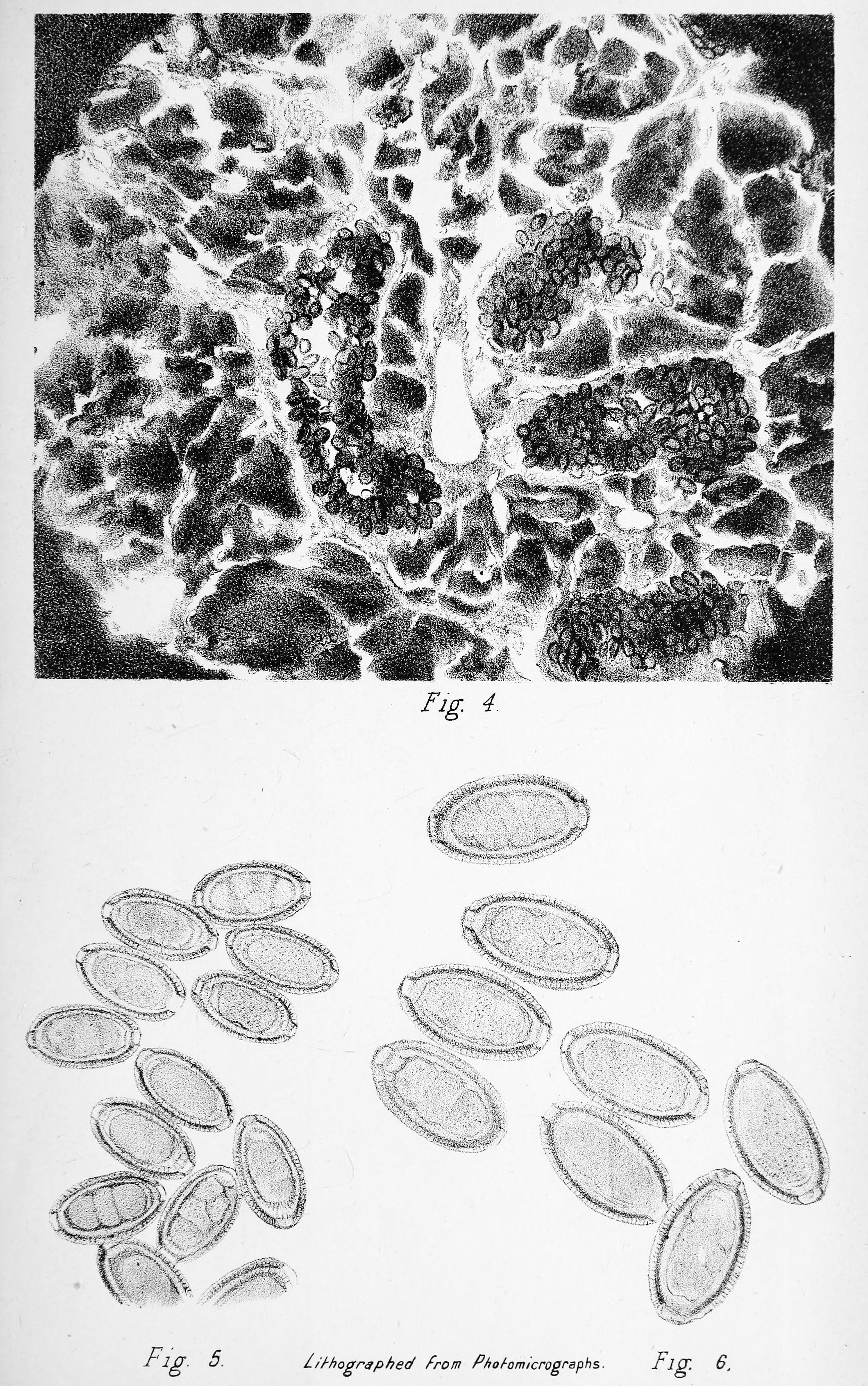 pinworm patogenezis a parazitákat drognak nevezik